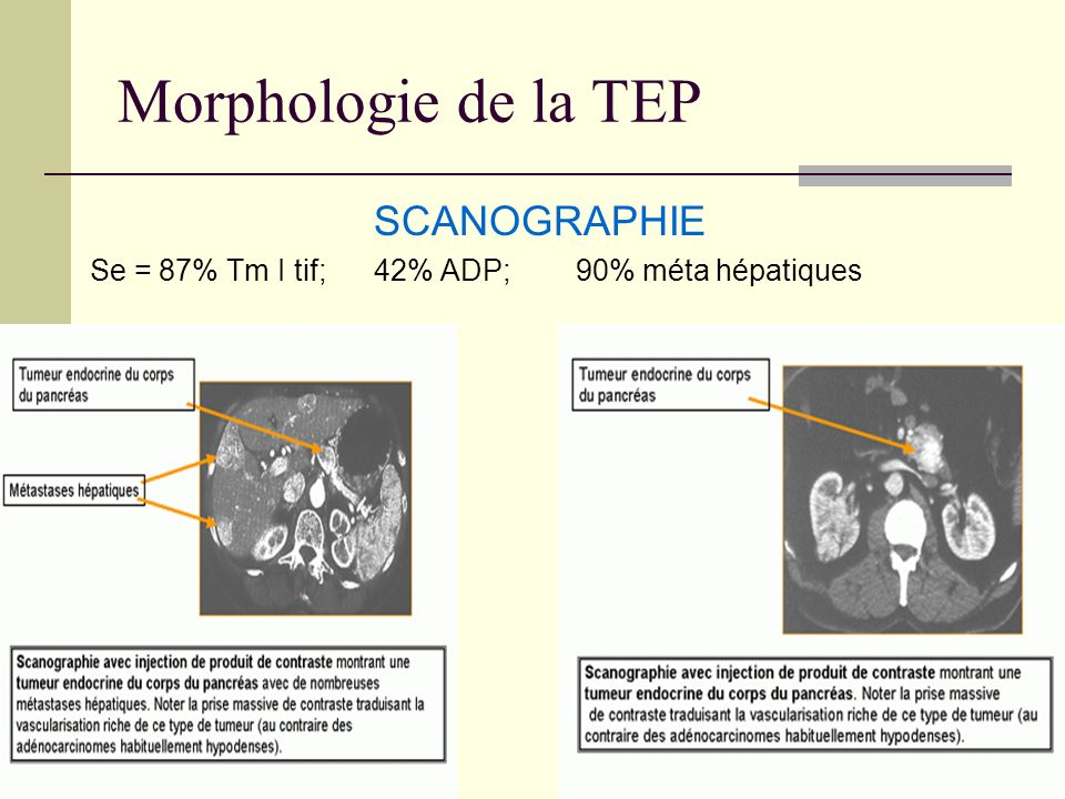 Morphologie de la TEP SCANOGRAPHIE Se = 87% Tm I tif; 42% ADP; 90% méta hépatiques
