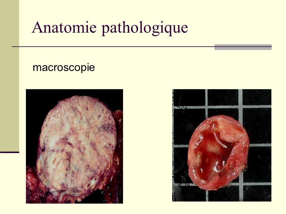 Chimioembolisation (70- 100)% Contrôle du syndrome tumorale 48% de réponse partielle 52% stabilisation de la maladie Jonathan et al cancer control 2006