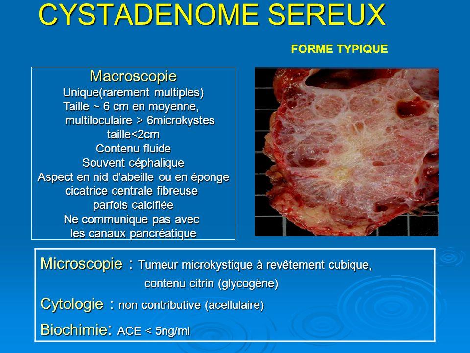 CYSTADENOME SEREUX Microscopie : Tumeur microkystique à revêtement cubique, contenu citrin (glycogène) contenu citrin (glycogène) Cytologie : non cont