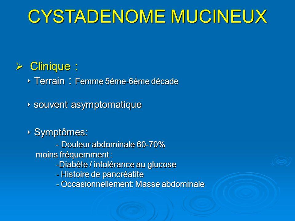 Clinique : Clinique : Terrain : Femme 5éme-6éme décade Terrain : Femme 5éme-6éme décade souvent asymptomatique souvent asymptomatique Symptômes: Sympt