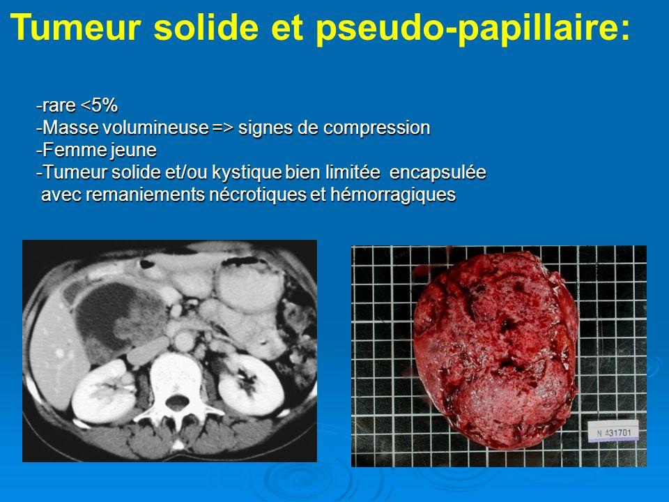 -rare signes de compression -Femme jeune -Tumeur solide et/ou kystique bien limitée encapsulée avec remaniements nécrotiques et hémorragiques Tumeur s