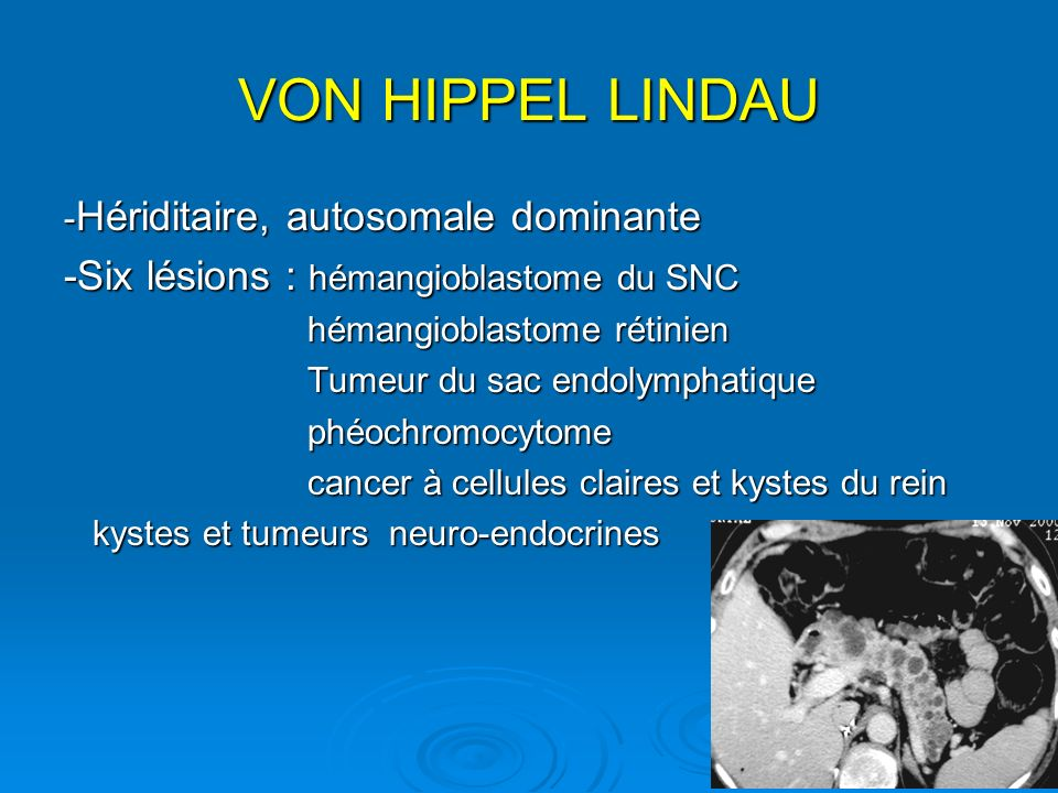 VON HIPPEL LINDAU - Hériditaire, autosomale dominante -Six lésions : hémangioblastome du SNC hémangioblastome rétinien hémangioblastome rétinien Tumeu
