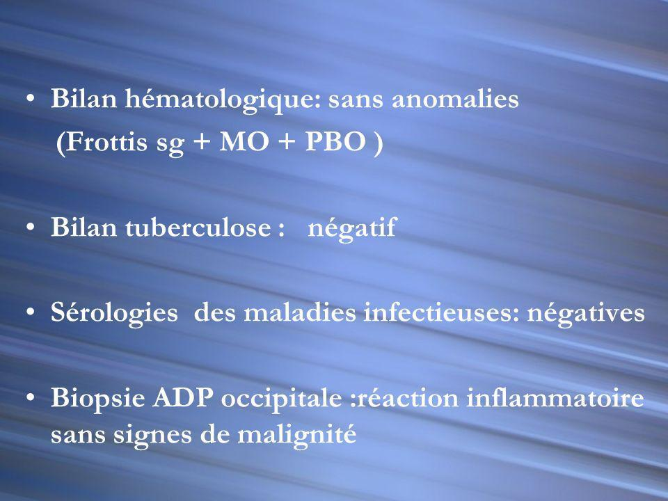 Bilan hématologique Bilan tuberculose TDM thoraco-abdominale Biopsie exerese ADP occipitale Bronchoscopie PBF Sérologies: leishmaniose, MNI test, bruc