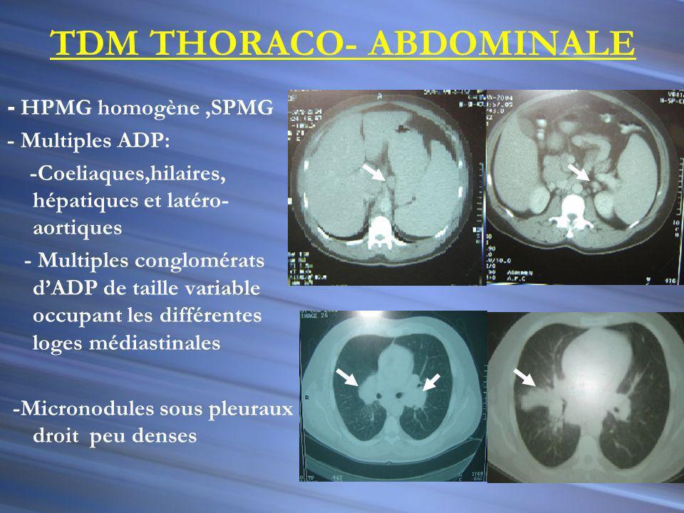 Bilan hématologique: sans anomalies (Frottis sg + MO + PBO ) Bilan tuberculose : négatif Sérologies des maladies infectieuses: négatives Biopsie ADP occipitale :réaction inflammatoire sans signes de malignité