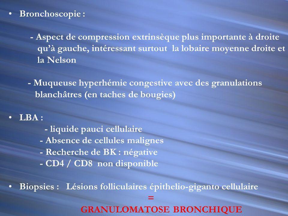 TDM THORACO- ABDOMINALE - HPMG homogène,SPMG - Multiples ADP: -Coeliaques,hilaires, hépatiques et latéro- aortiques - Multiples conglomérats dADP de t