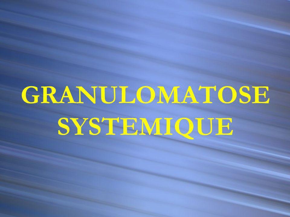Couronne lympho-plasmocytaire Cellule géante de Langhans