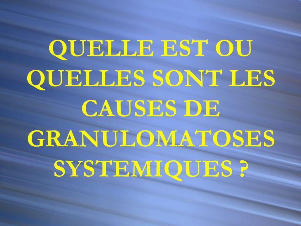 GRANULOMATOSE SYSTEMIQUE