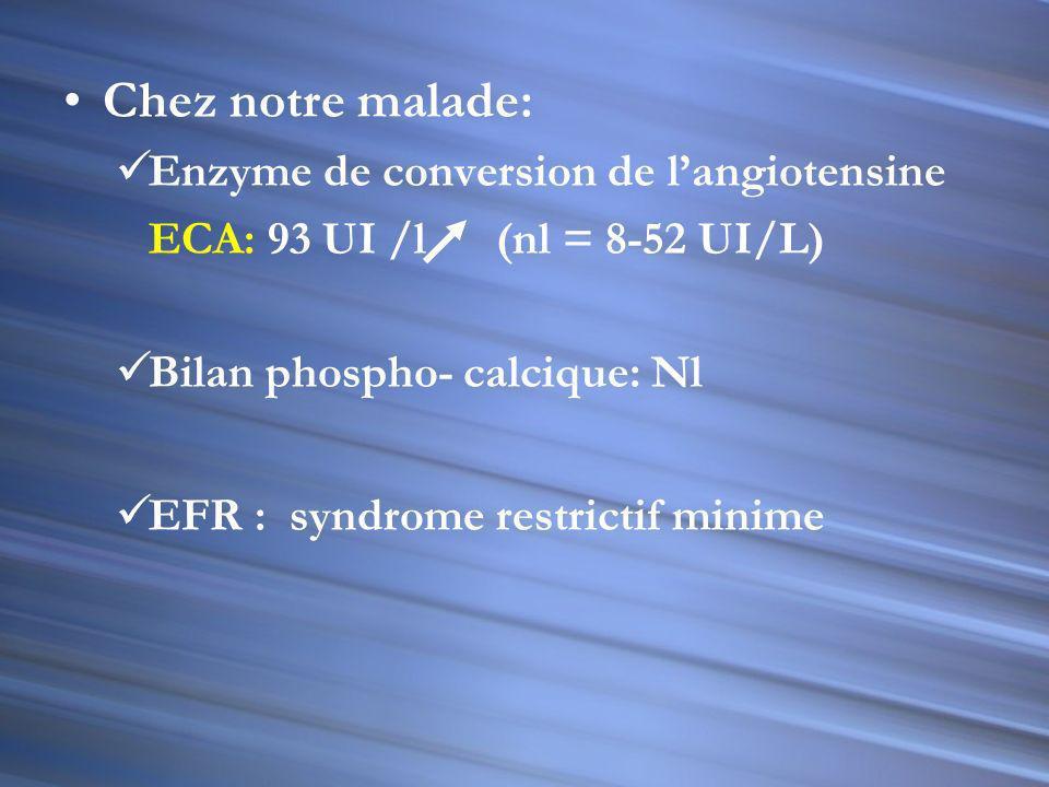 Item 124 - la sarcoïdose LES CRITÈRES DIAGNOSTIQUES DE LA SARCOÏDOSE Présentation épidémiologique, clinique, radiologique (radiographie± TDM) et biolo