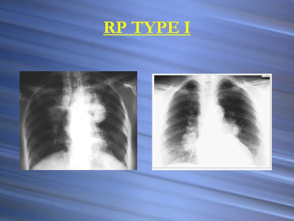 FACTEURS DE GRAVITÉ Localisations particulières :système nerveux, cœur, rein Hypercalcémie Altération de létat général Intensité du processus granulomateux Fibrose pulmonaire (stade IV radiologique de latteinte pulmonaire)
