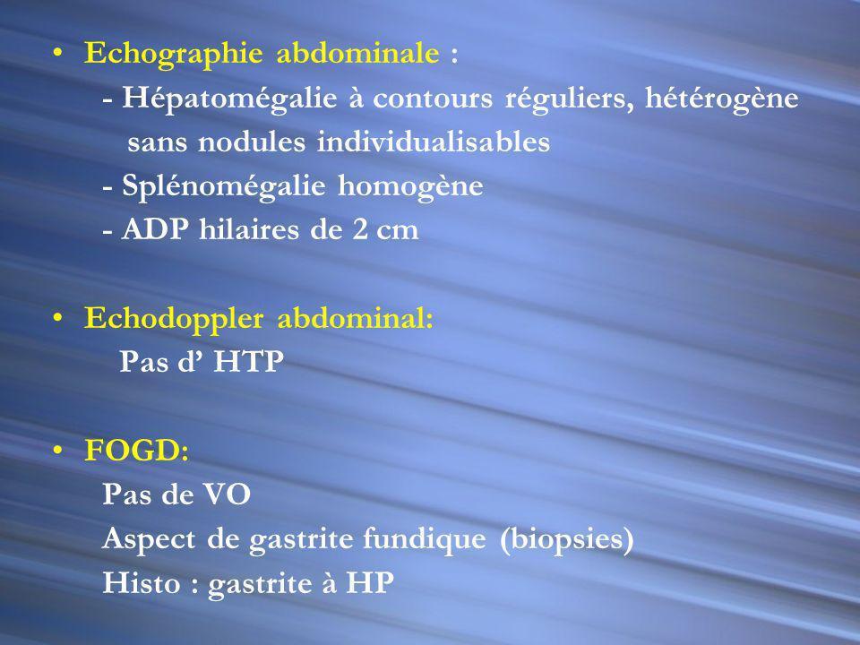Echographie abdominale : - Hépatomégalie à contours réguliers, hétérogène sans nodules individualisables - Splénomégalie homogène - ADP hilaires de 2 cm Echodoppler abdominal: Pas d HTP FOGD: Pas de VO Aspect de gastrite fundique (biopsies) Histo : gastrite à HP