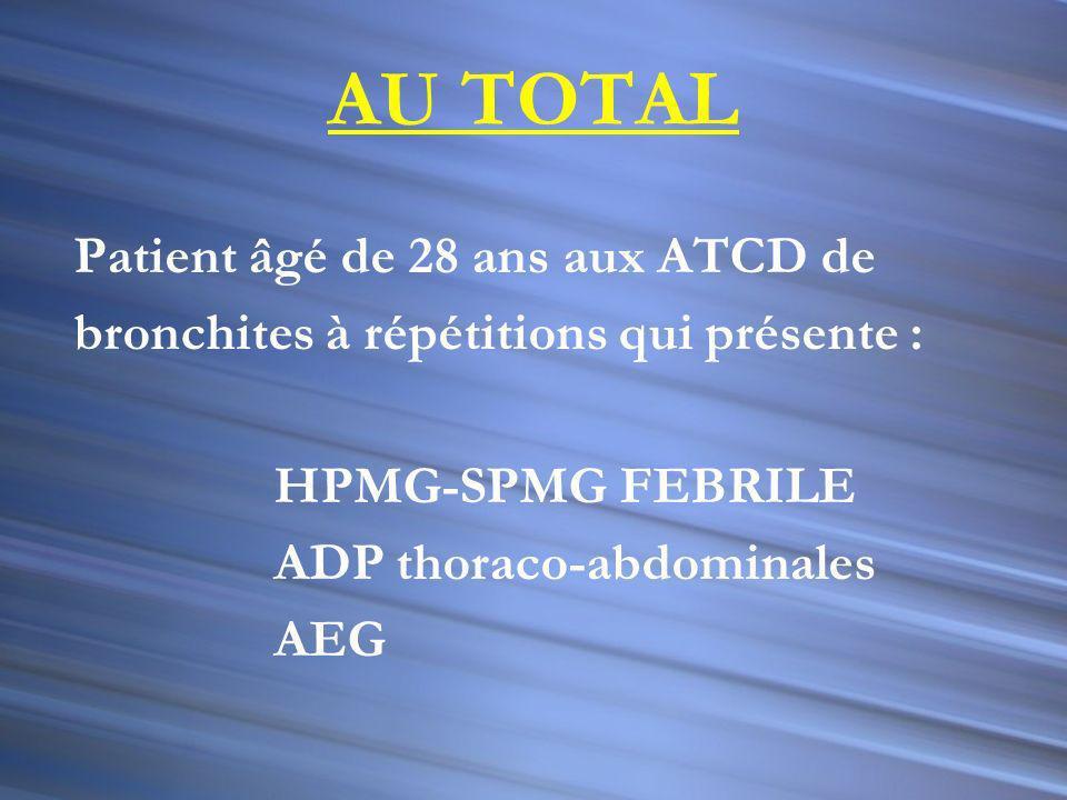 AU TOTAL Patient âgé de 28 ans aux ATCD de bronchites à répétitions qui présente : HPMG-SPMG FEBRILE ADP thoraco-abdominales AEG