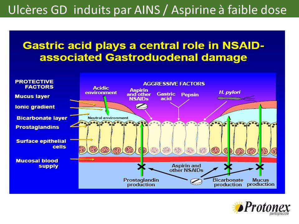 Ulcères GD induits par AINS / Aspirine à faible dose