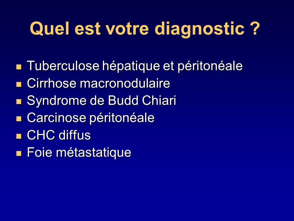 Quel est votre diagnostic ? Tuberculose hépatique et péritonéale Tuberculose hépatique et péritonéale Cirrhose macronodulaire Cirrhose macronodulaire