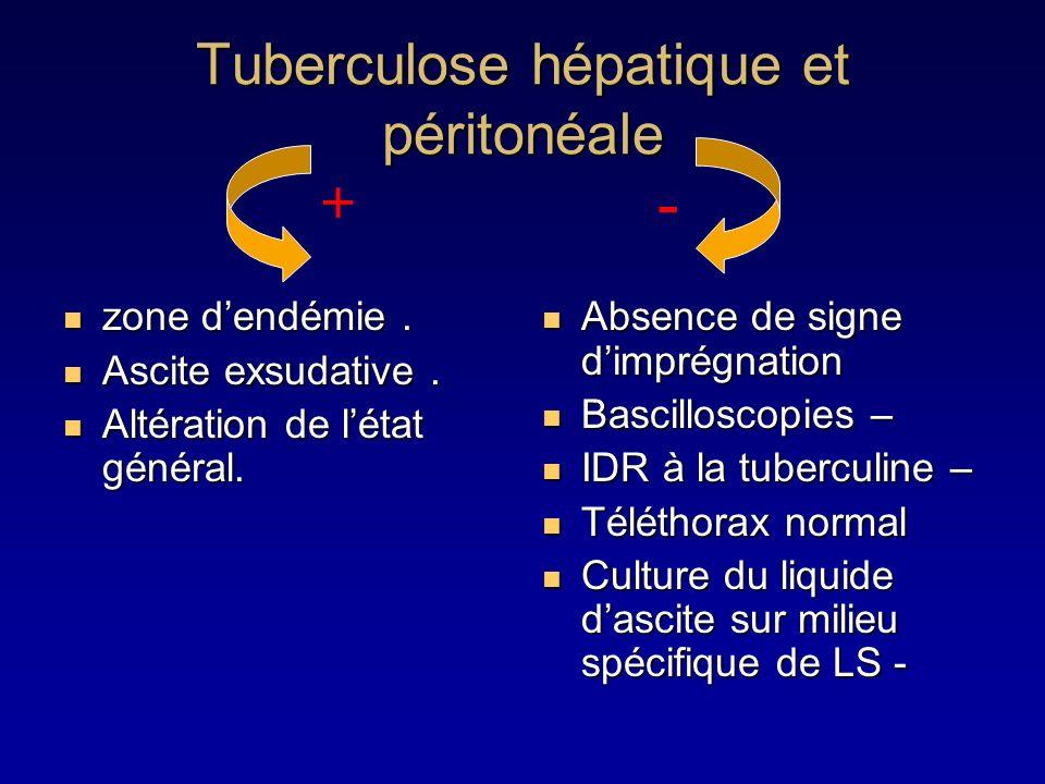 Tuberculose hépatique et péritonéale zone dendémie. zone dendémie. Ascite exsudative. Ascite exsudative. Altération de létat général. Altération de lé