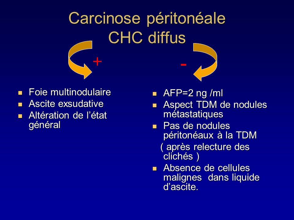 Carcinose péritonéale CHC diffus Foie multinodulaire Foie multinodulaire Ascite exsudative Ascite exsudative Altération de létat général Altération de