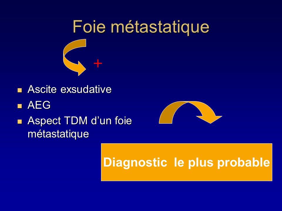 Foie métastatique Ascite exsudative Ascite exsudative AEG AEG Aspect TDM dun foie métastatique Aspect TDM dun foie métastatique + Diagnostic le plus p