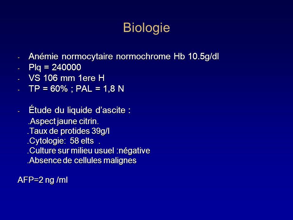 Biologie - Anémie normocytaire normochrome Hb 10.5g/dl - Plq = 240000 - VS 106 mm 1ere H - TP = 60% ; PAL = 1,8 N - Étude du liquide dascite :.Aspect