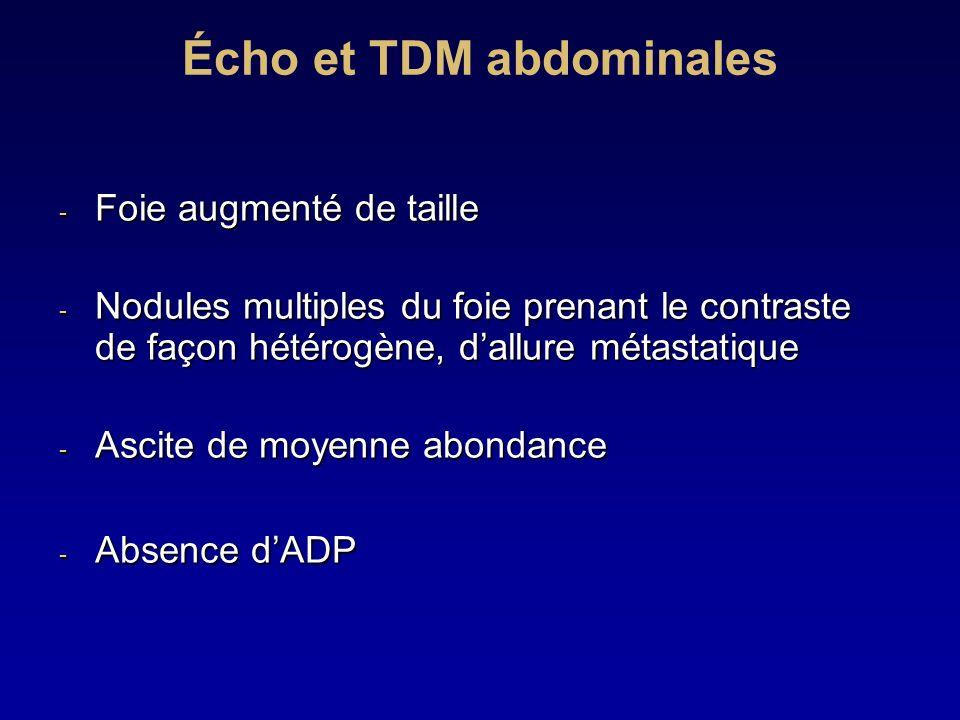 Écho et TDM abdominales - Foie augmenté de taille - Nodules multiples du foie prenant le contraste de façon hétérogène, dallure métastatique - Ascite