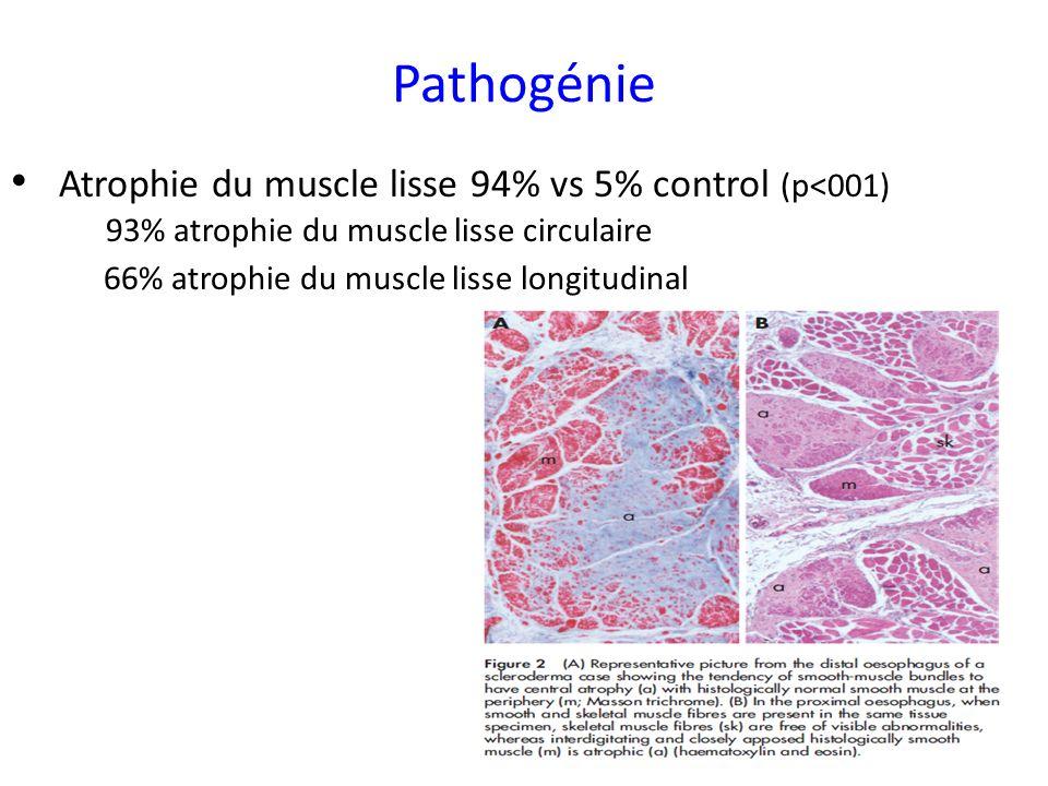 Atrophie du muscle lisse 94% vs 5% control (p<001) 93% atrophie du muscle lisse circulaire 66% atrophie du muscle lisse longitudinal Pathogénie