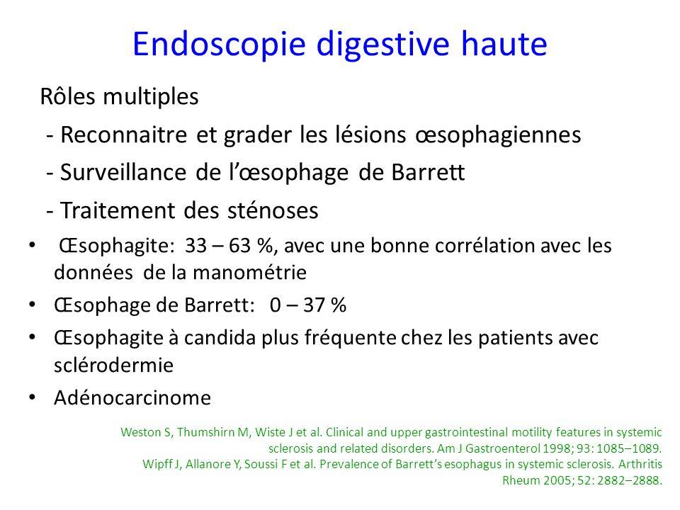 Rôles multiples - Reconnaitre et grader les lésions œsophagiennes - Surveillance de lœsophage de Barrett - Traitement des sténoses Œsophagite: 33 – 63
