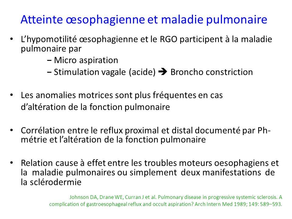 Atteinte œsophagienne et maladie pulmonaire Lhypomotilité œsophagienne et le RGO participent à la maladie pulmonaire par Micro aspiration Stimulation