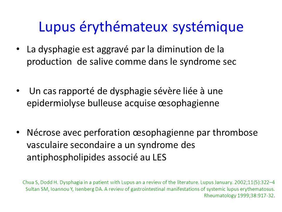 La dysphagie est aggravé par la diminution de la production de salive comme dans le syndrome sec Un cas rapporté de dysphagie sévère liée à une epider