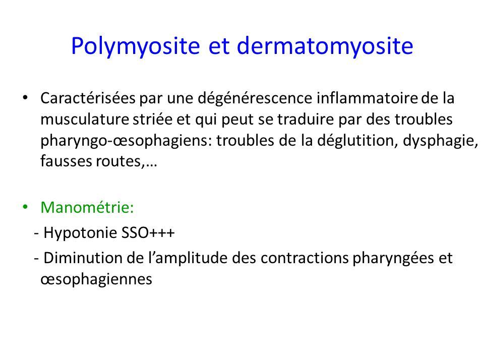 Polymyosite et dermatomyosite Caractérisées par une dégénérescence inflammatoire de la musculature striée et qui peut se traduire par des troubles pha