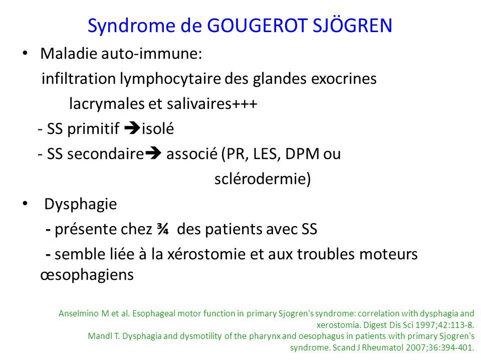 Syndrome de GOUGEROT SJÖGREN Maladie auto-immune: infiltration lymphocytaire des glandes exocrines lacrymales et salivaires+++ - SS primitif isolé - S