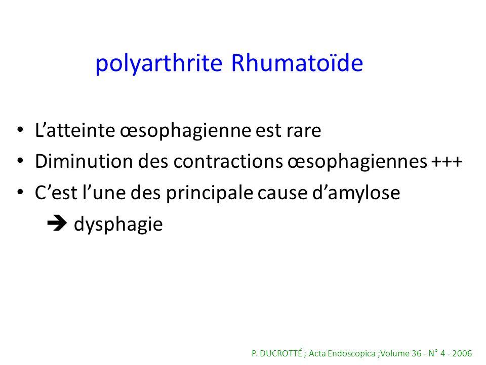 Latteinte œsophagienne est rare Diminution des contractions œsophagiennes +++ Cest lune des principale cause damylose dysphagie P. DUCROTTÉ ; Acta End