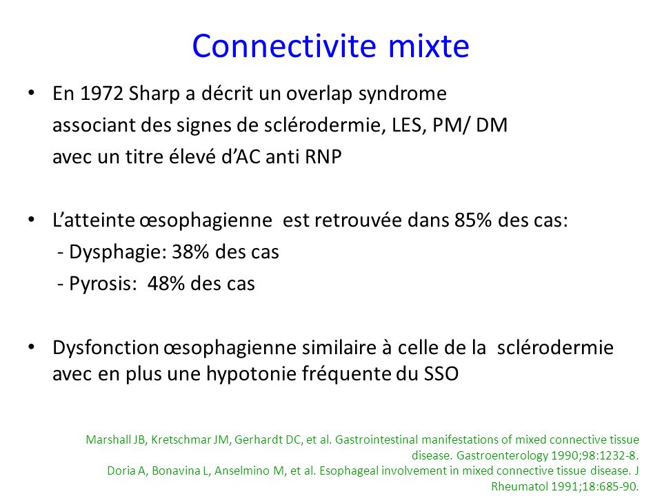 Connectivite mixte En 1972 Sharp a décrit un overlap syndrome associant des signes de sclérodermie, LES, PM/ DM avec un titre élevé dAC anti RNP Latte