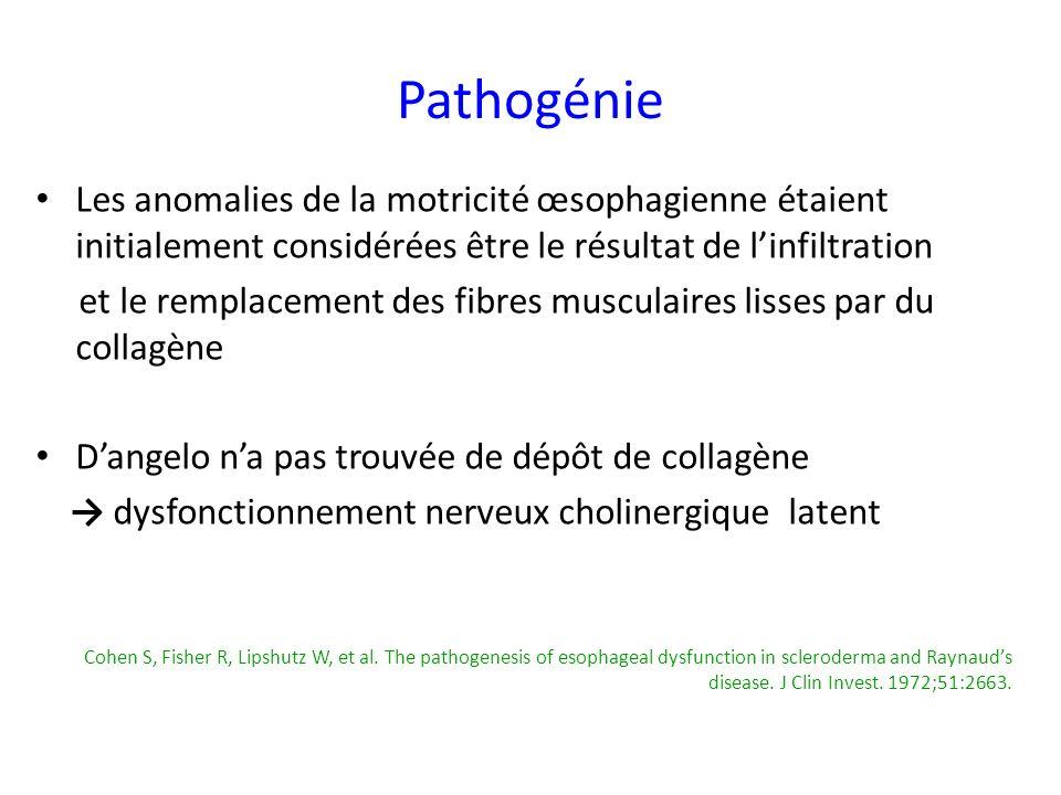 Pathogénie Les anomalies de la motricité œsophagienne étaient initialement considérées être le résultat de linfiltration et le remplacement des fibres