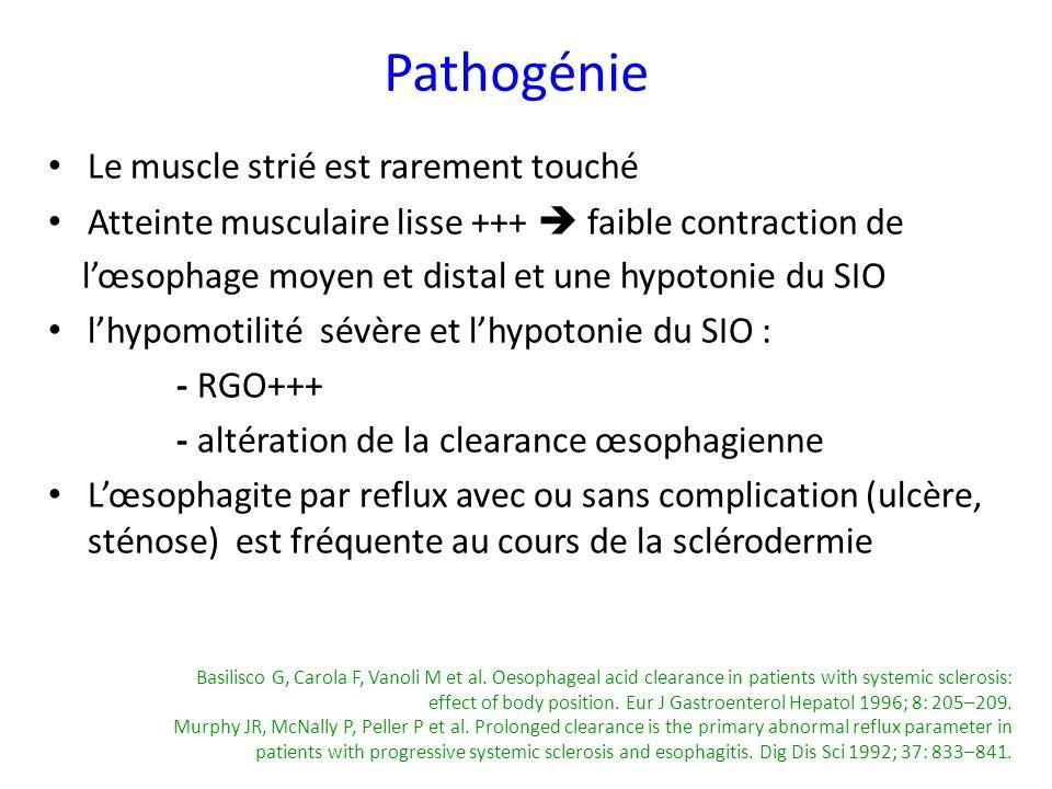 Le muscle strié est rarement touché Atteinte musculaire lisse +++ faible contraction de lœsophage moyen et distal et une hypotonie du SIO lhypomotilit