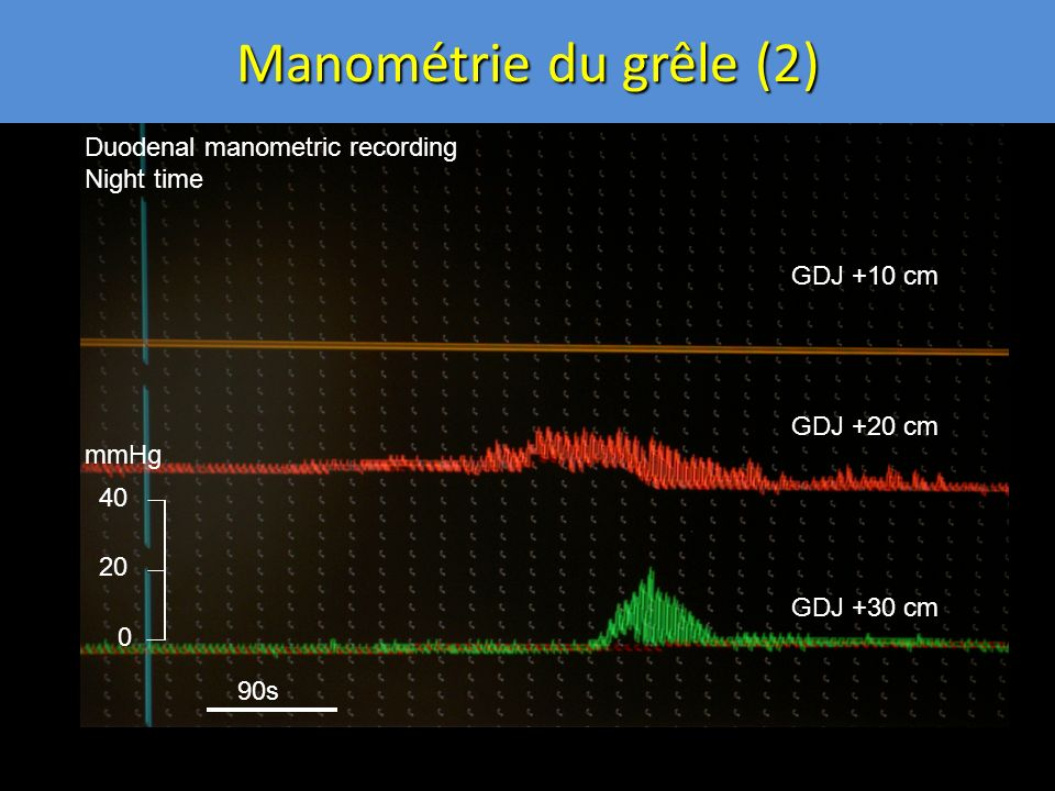 Manométrie du grêle (2) 0 20 40 GDJ +10 cm GDJ +20 cm GDJ +30 cm Duodenal manometric recording Night time mmHg 90s