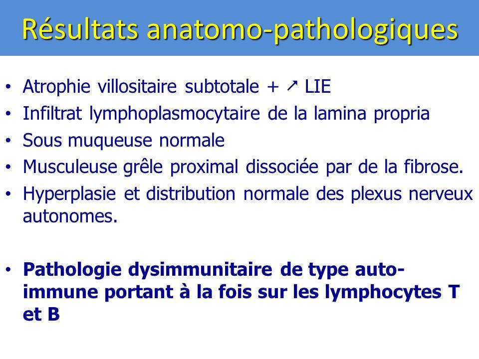 Résultats anatomo-pathologiques Atrophie villositaire subtotale + LIE Infiltrat lymphoplasmocytaire de la lamina propria Sous muqueuse normale Musculeuse grêle proximal dissociée par de la fibrose.