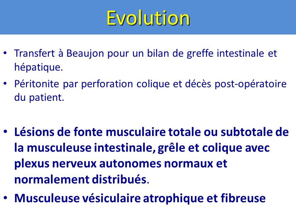 Evolution Transfert à Beaujon pour un bilan de greffe intestinale et hépatique.