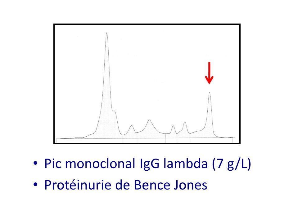 Pic monoclonal IgG lambda (7 g/L) Protéinurie de Bence Jones