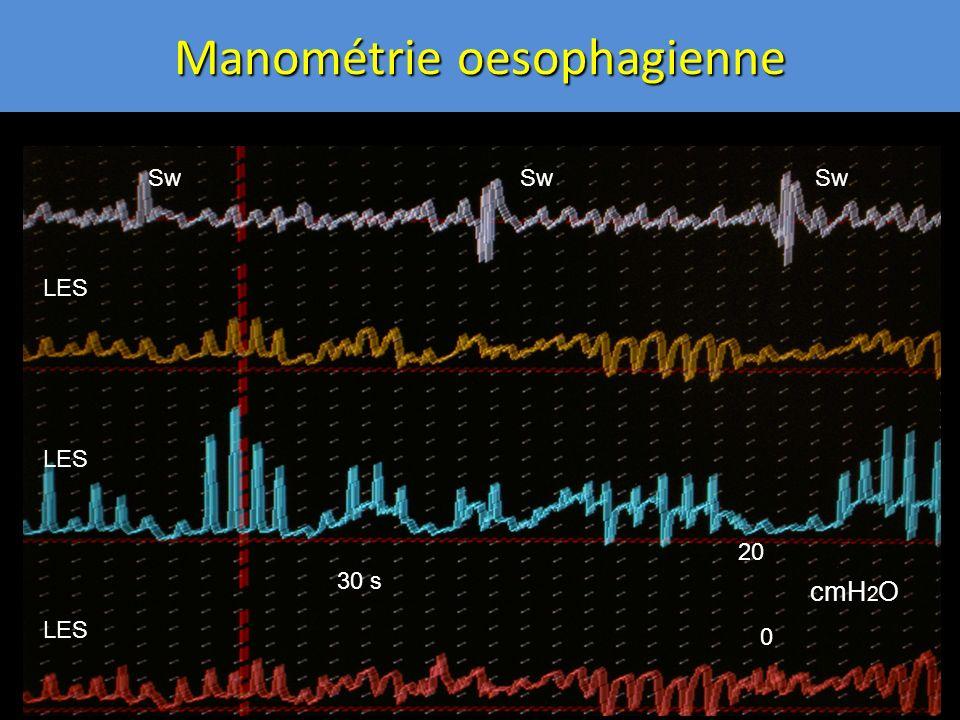 Sw LES 30 s 20 0 cmH 2 O Manométrie oesophagienne