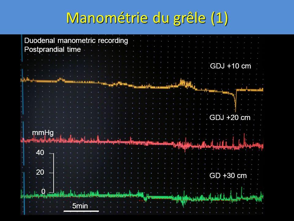 Manométrie du grêle (1) 0 20 40 GDJ +10 cm GDJ +20 cm GD +30 cm Duodenal manometric recording Postprandial time mmHg 5min