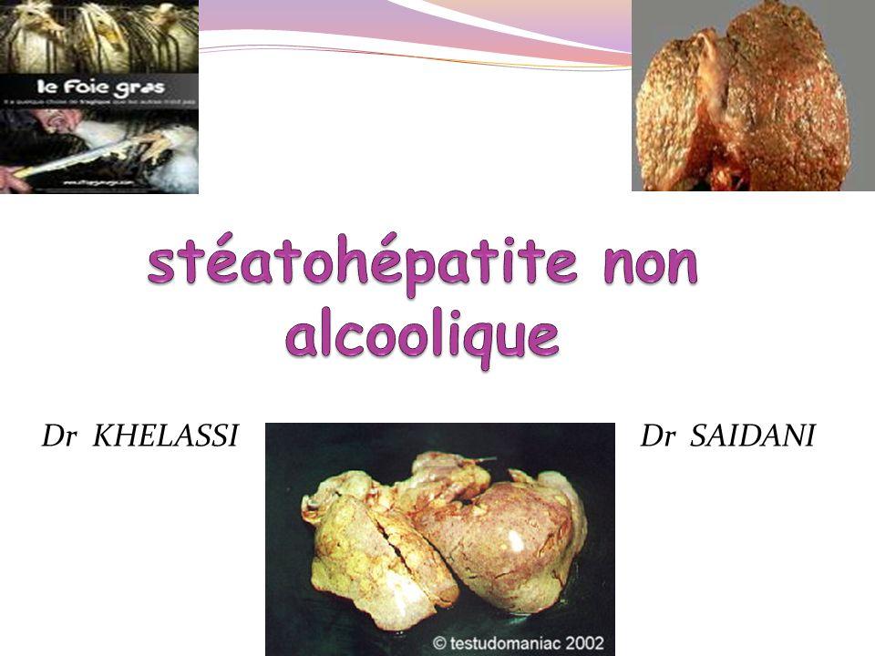 DÉFINITION NAFLD: NON ALCOHOLIC FATTY LIVER DISEASE Spectre de pathologies hépatiques Histologie: Surcharge graisseuse anormale >5% du pds du foie Faible ingestion dalcool (< 30g/j / < 20g/j ) Stéatose hépatique ==) fréquente - Bénigne 02 grands groupes NASH NASH : NON ALCOHOLIC STEATO HEPATITIS stéatose + modifications nécrotico – inflammatoire Journal of Hepatology 48 (2008) S104–S112 *Clin Liver Dis 11 (2007) 1–16