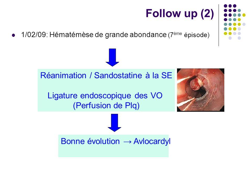 1/02/09: Hématémèse de grande abondance (7 ème épisode) Follow up (2) Réanimation / Sandostatine à la SE Ligature endoscopique des VO (Perfusion de Pl