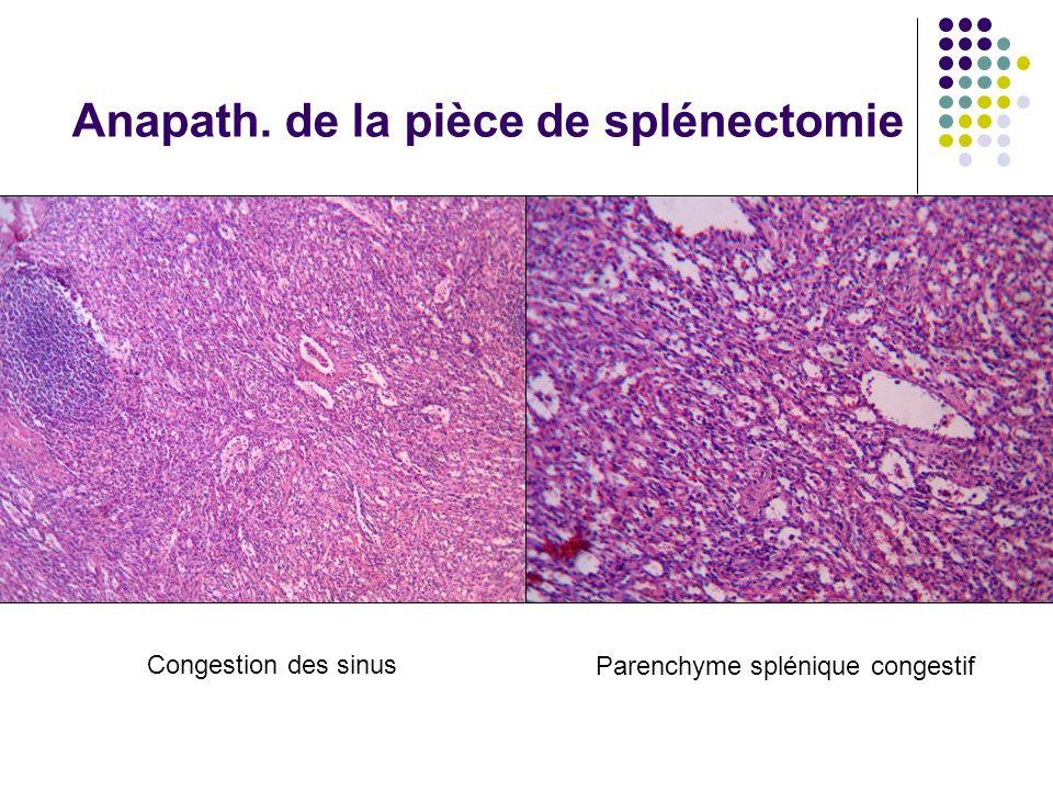 Parenchyme splénique congestif Congestion des sinus Anapath. de la pièce de splénectomie