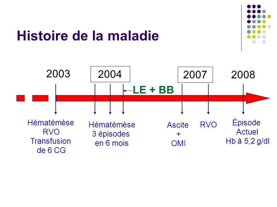 État général médiocre, OMS 2 TA: 80/50mmHg FC: 90 bt/mn T°: 37° c Taille: 1.53 m Pds: 43 Kg BMI 18 FH= 9 cm ; SPM type 4 ; Ascite (-) TR: sang noirâtre Examen à ladmission Explorations biologiques Hb: 5.2 g/dl ; Hte: 15.5% ; GB: 1100/mm3 ; Plq: 17.000/mm3 TP: 43.1% Conduite durgence Réanimation avec transfusion de 3 CG et 5 CP Sandostatine à la SE Prévention de lEH