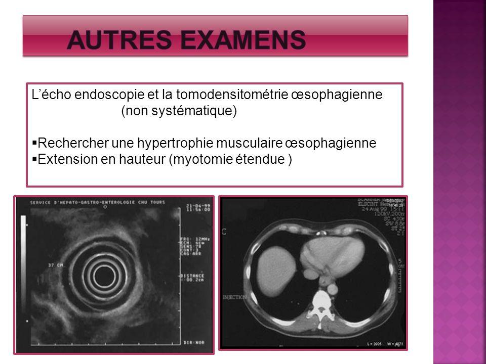 Lécho endoscopie et la tomodensitométrie œsophagienne (non systématique) Rechercher une hypertrophie musculaire œsophagienne Extension en hauteur (myo