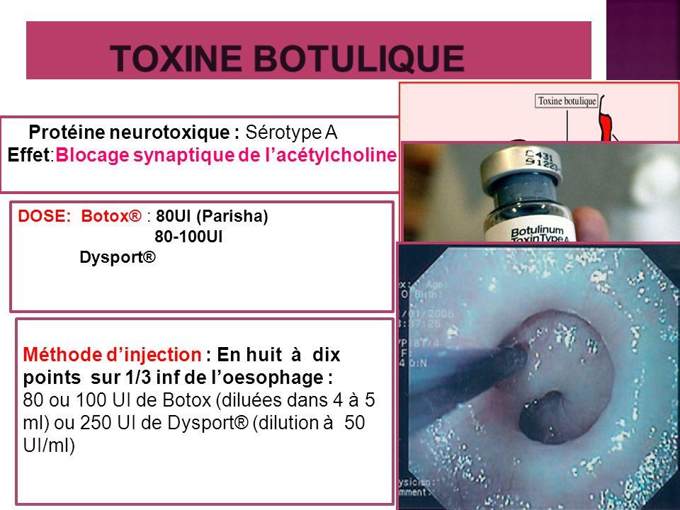 Protéine neurotoxique : Sérotype A Effet:Blocage synaptique de lacétylcholine DOSE: Botox® : 80UI (Parisha) 80-100UI Dysport® Méthode dinjection : En