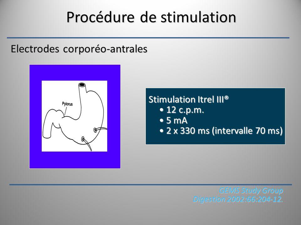 Procédure de stimulation Stimulation Itrel III® 12 c.p.m. 12 c.p.m. 5 mA 5 mA 2 x 330 ms (intervalle 70 ms) 2 x 330 ms (intervalle 70 ms) Electrodes c