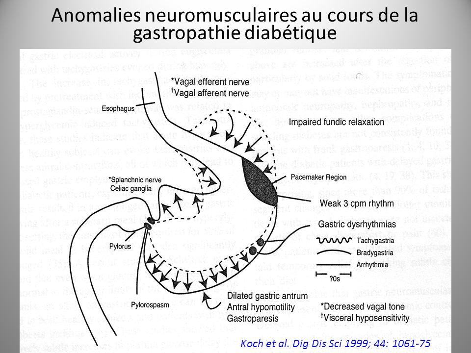 Koch et al. Dig Dis Sci 1999; 44: 1061-75 Anomalies neuromusculaires au cours de la gastropathie diabétique