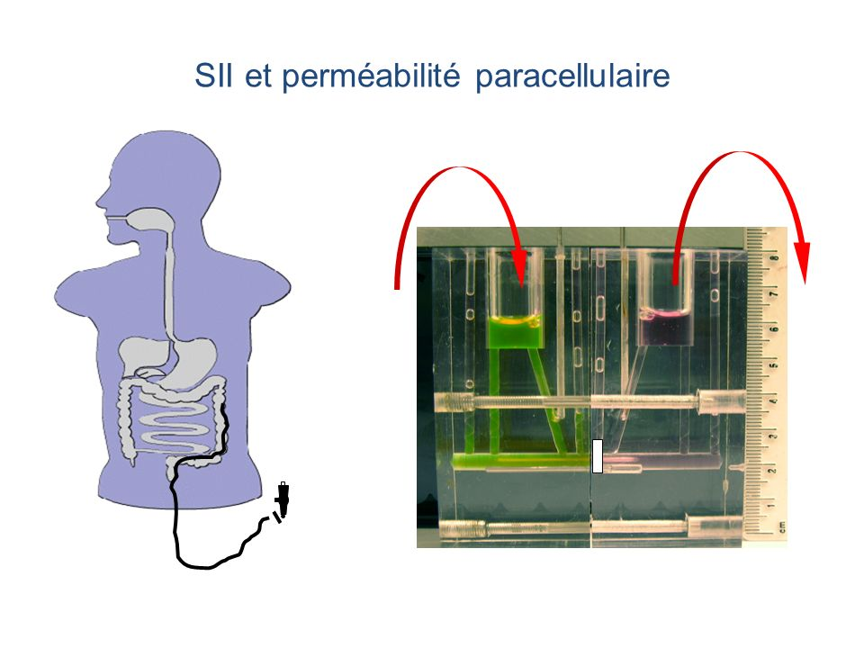 SII : Augmentation de la perméabilité paracellulaire Piche et al. Gut 2009;58:196-201.