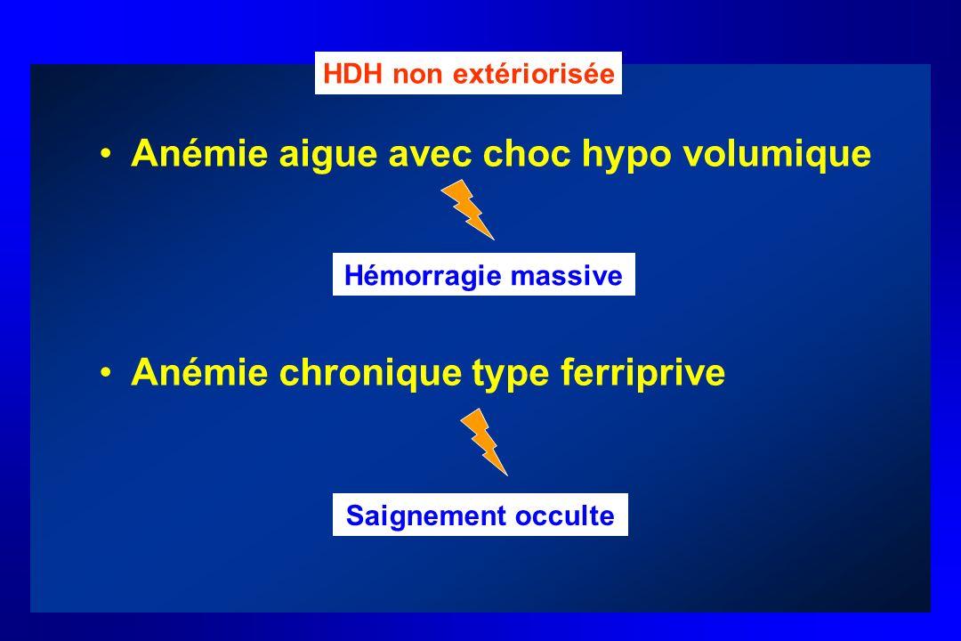 Anémie aigue avec choc hypo volumique Anémie chronique type ferriprive HDH non extériorisée Hémorragie massive Saignement occulte