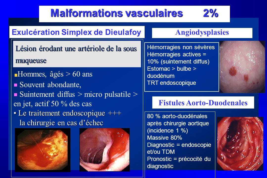 Malformations vasculaires 2% Hommes, âgés > 60 ans Souvent abondante, Suintement diffus > micro pulsatile > en jet, actif 50 % des cas Le traitement e