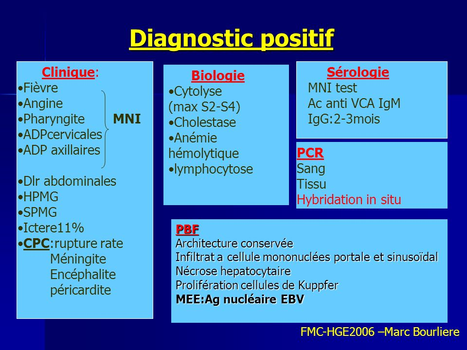 Diagnostic positif Diagnostic positif Clinique: Fièvre Angine Pharyngite MNI ADPcervicales ADP axillaires Dlr abdominales HPMG SPMG Ictere11% CPC:rupt